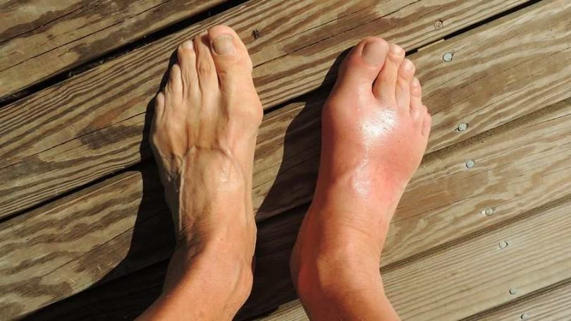 Natural Remedies for Gout Pain Relief