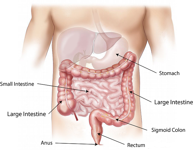 symptoms_treatment of bowel cancer