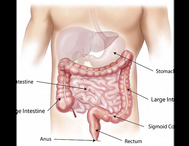 symptoms_treatment of bowel cancer