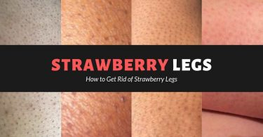 Get Rid of Strawberry Legs