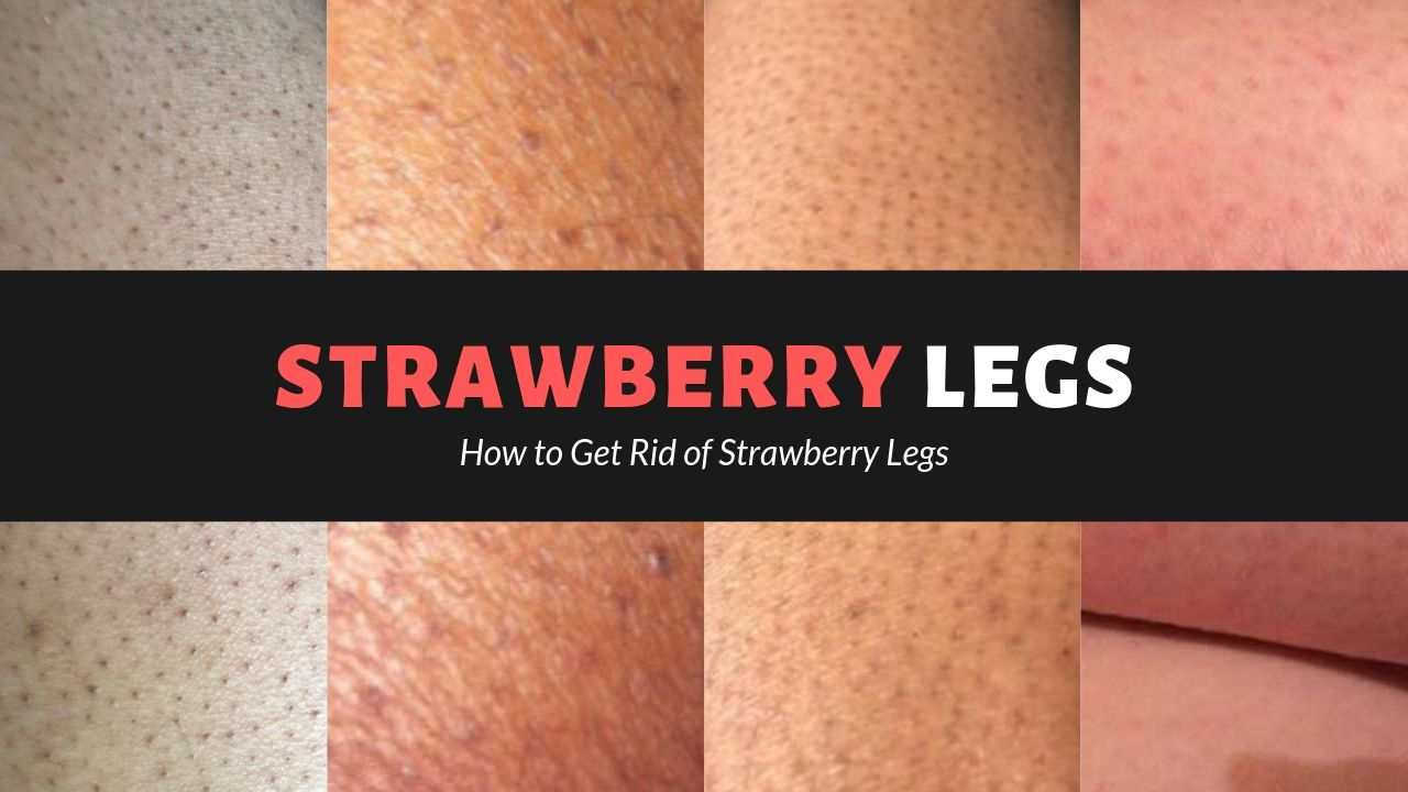 Fastest Way To Get Rid Of Strawberry Legs