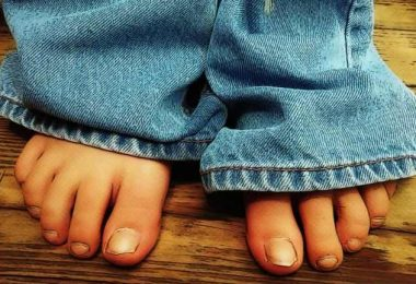 How to cure yellow thick toenails