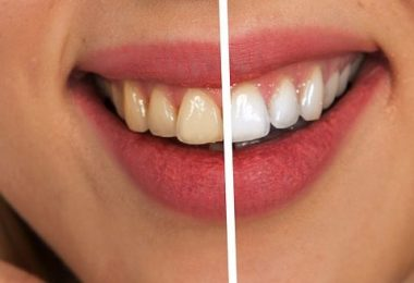 The One Hour Teeth Whitening at Home