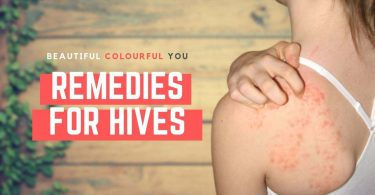 Best Home Remedies for Hives All Over the Body