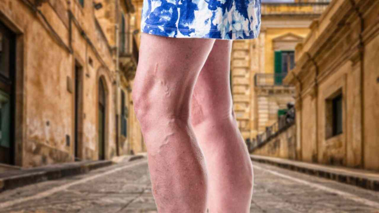 How to Get Rid Of Varicose Veins in Your Leg