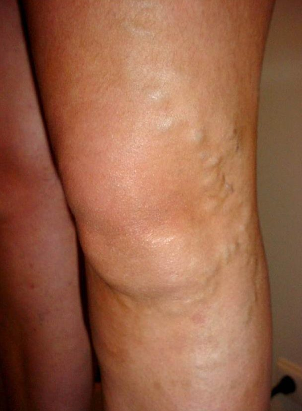 What are Varicose Vein Symptoms