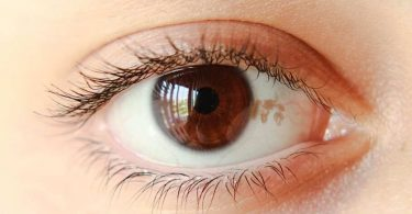 How to Get Rid of Brown Spots on White Part of Eye Naturally