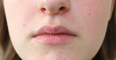 cure perioral dermatitis naturally at home