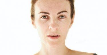 Thin Skin Under Eyes with White Background